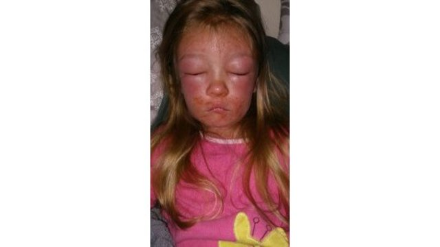 6-year-old develops serious infection after swimming at Virginia beach