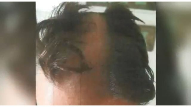 Barber charged for shaving bald spot into customer's head