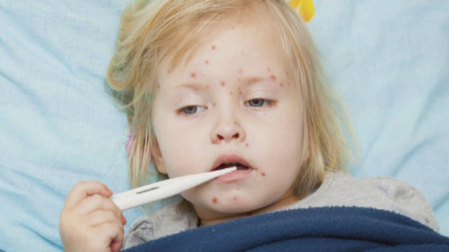 Measles making comeback in Texas as parents opt out of vaccines